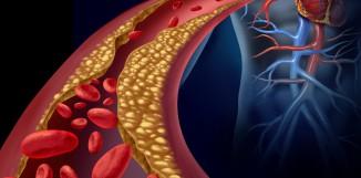 Reishi a rozvoj aterosklerózy