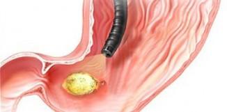 Reishi a žaludeční vředy